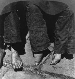 Drei Paar Füße, davon zwei kleine Lotusfüße