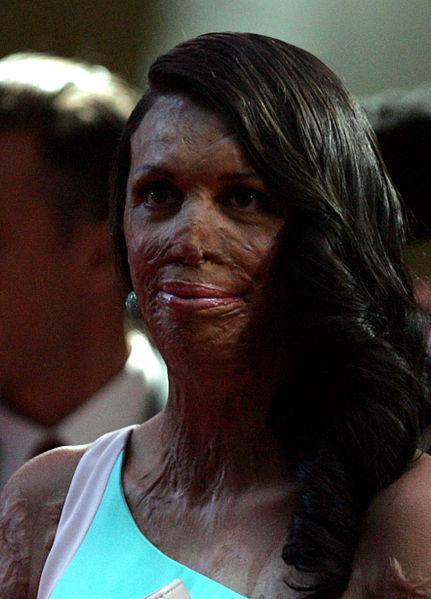 Frau mit Hautverletzungen guckt in die Kamera