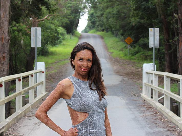 Frau mit grauem Kleid steht auf einer Brücke