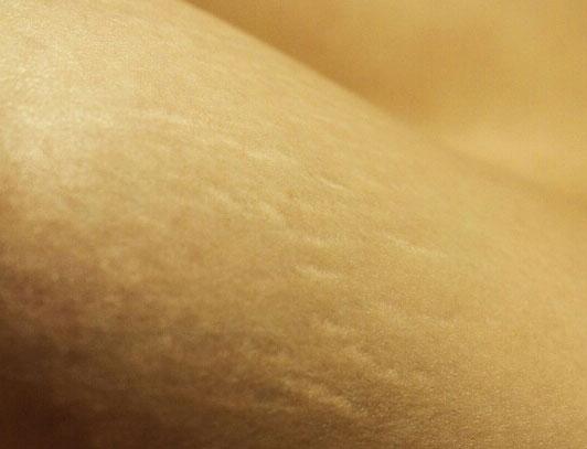 Fotografie, die den Ausschnitt eines Körpers in Nahaufnahme zeigt. Auf der Haut sind Dehnungsstreifen.